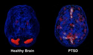 Post Traumatic Stress Syndrome Brain Scans